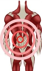 musculoskeletal back pain lower left side