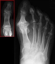 big toe joint x-ray