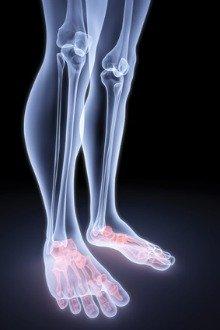 what causes burning feet