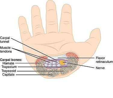 wrist pain relief